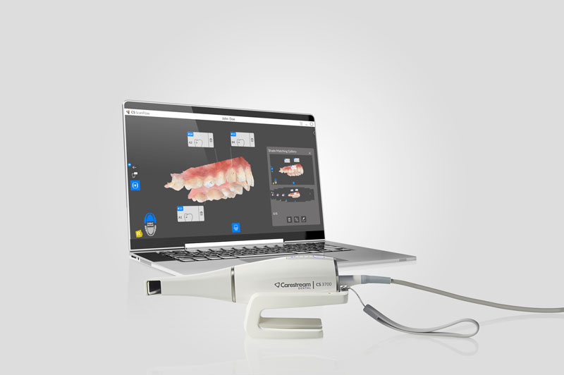 Scanner intraorali 3D