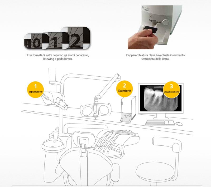 Scanner ai fosfori CS7200 e CS7600: funzionamento