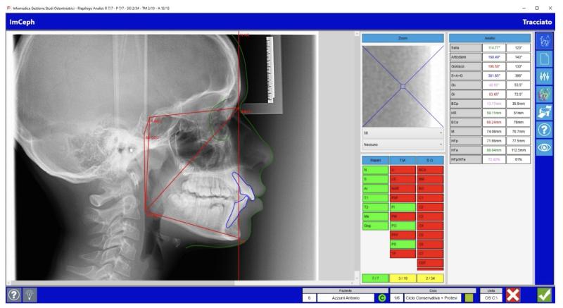 IMCEPH - Software per cefalometria ortodontica