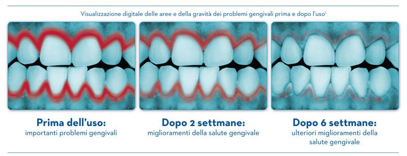 Dentifricio per la riduzione dei problemi gengivali