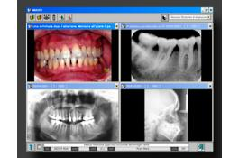 Management software for dental images IMAGES