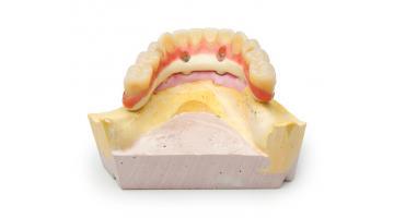 Polimero biocompatibile per protesi dentali