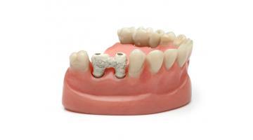 Polimero performante per protesi dentali