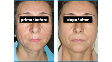 Apparecchio per isoforesi trattamento viso prima-dopo