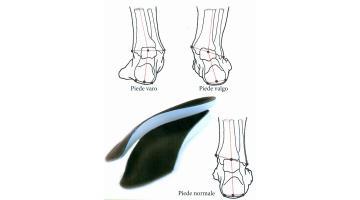 Plantare posturale propriocettivo